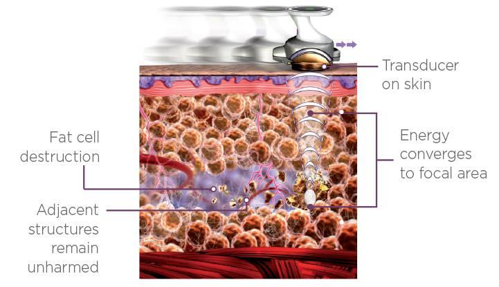 how-ultrashape-gets-rid-of-fat-1