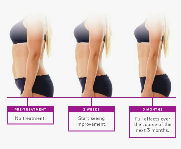 ultrashape-treatment-plan-619x512-1